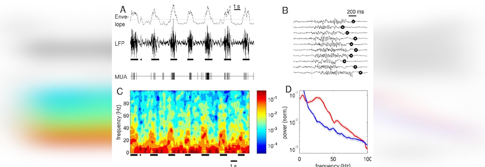Solution à haute fréquence de traitement des signaux de système rotatoire
